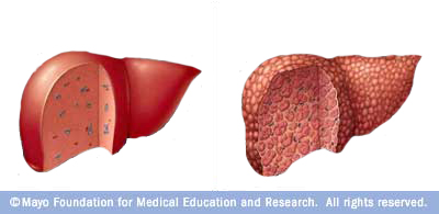 how to help a enlarged liver