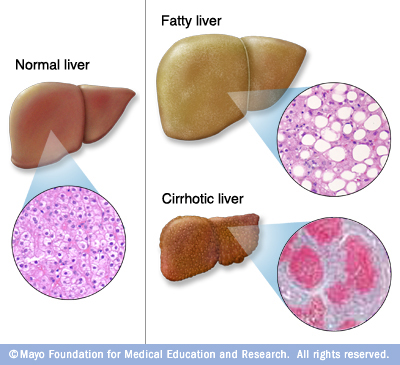 Liver Problems The Simptoms Cause And Prevention